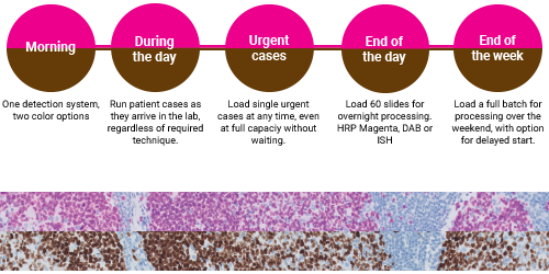 How HRP Magenta visualization fits into your immunohistochemistry (IHC) staining workflow