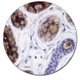 Gross Cystic Disease Fluid Protein-15 (Autostainer/Autostainer Plus)