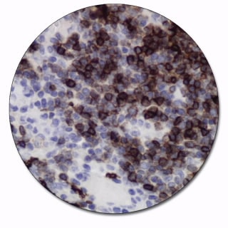 CD1a (Autostainer Link 48)