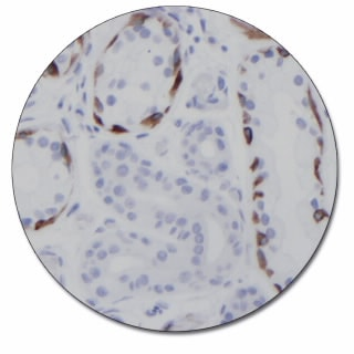 Cytokeratin 17 (Concentrate)